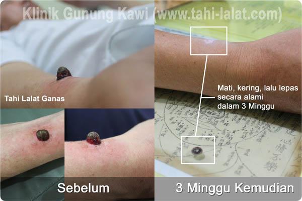 operasi laser tahi lalat